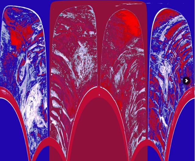 Radiographie par l'artiste Xavier Lucchesi