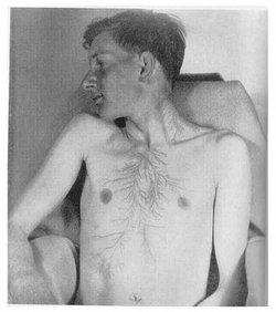 L'effet Lichtenberg sur le corps humain